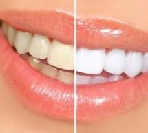 ما هي عملية تبييض الأسنان؟وطرق التبييض
