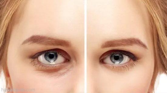ودّعي انتفاخ العينين والهالات السوداء مع هذه العلاجات