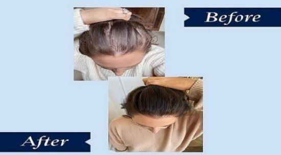 قطرة سحرية لتكثيف الشعر في أقل من ثلاثة أشهر